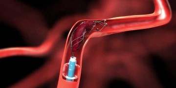 Trombectomía mecánica mediante stents retrievers.